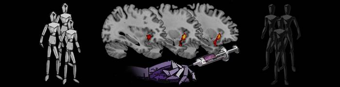 Neural Basis of the Empathic Processes of Other's Pain
